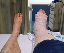 How I Broke My Ankle Tall Tale Contest