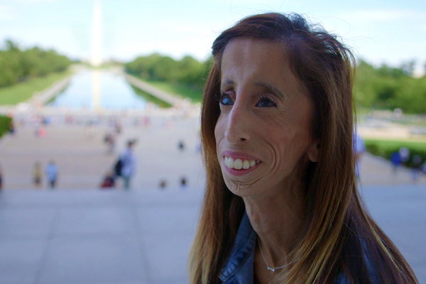 Lizzie Velasquez in A Brave Heart: The Lizzie Velasquez Story, distributed by Cinedigm.